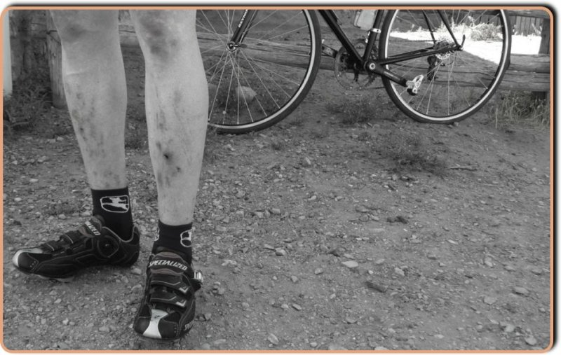 Bruised Cyclists Legs
