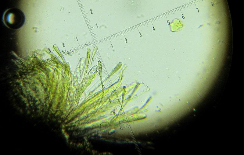 Anthracobia melaloma 002 asci & paraphyses Foxcovert Plantation NR Notts 2016-11-12.JPG