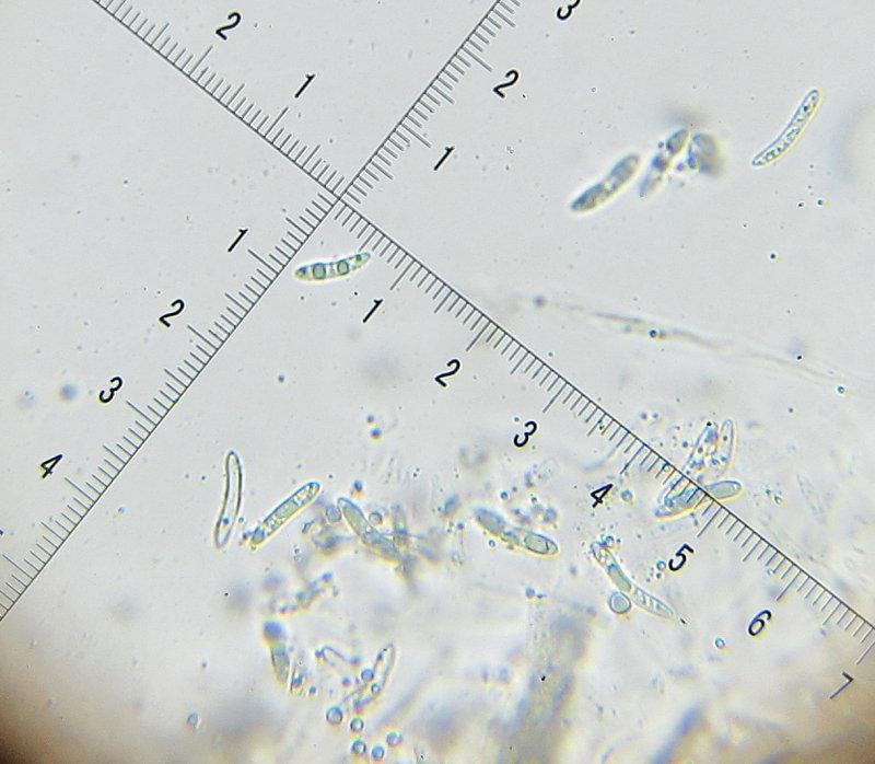 Echinosphaeria canescens 004 ascospores 14-5-2016.JPG