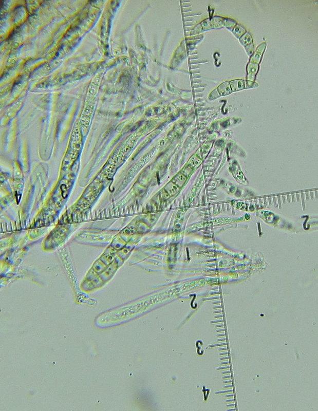 Phaeosphaeria eustoma 003 asci & spores 9-5-2016.JPG