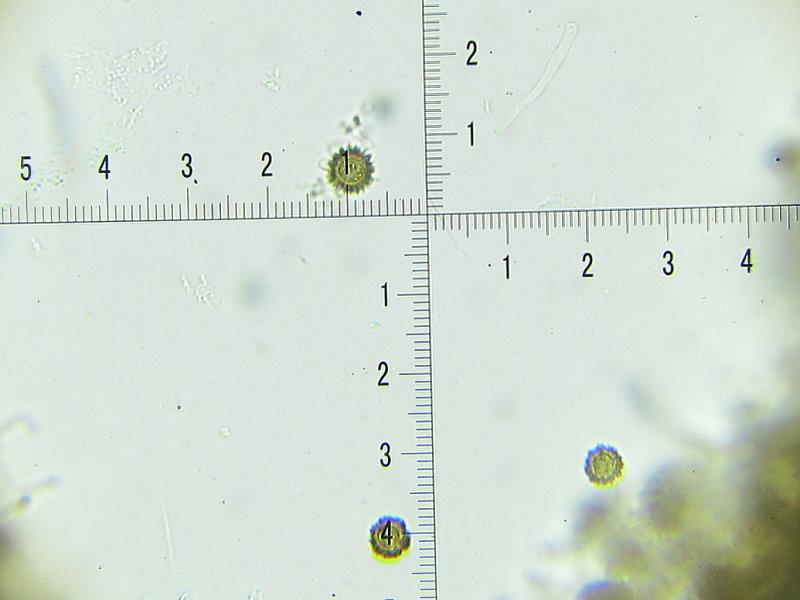 Scleroderma areolatum 002 spores 11-13 microns 2017-9-9.JPG