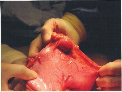 tumor1-Susie