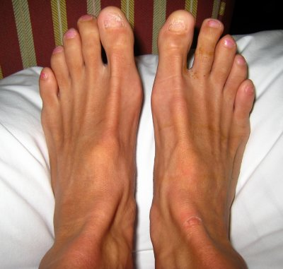 Addendum: I added this picture from April 2008 so you can see the long-term results of my toenail removal (read on below)