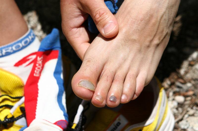 Scotts Left Foot