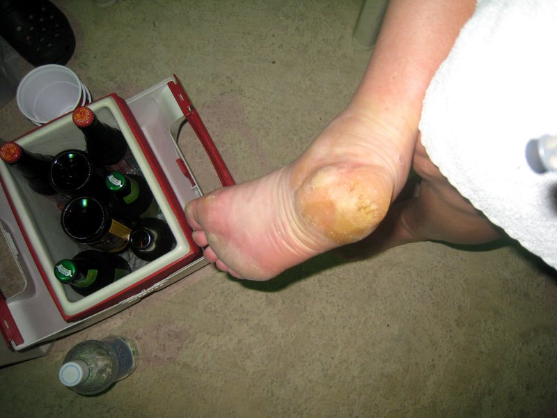 note the beer , which helps the heel!