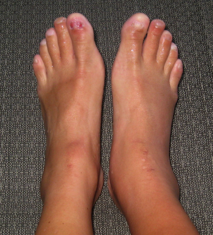 right > left swelling
