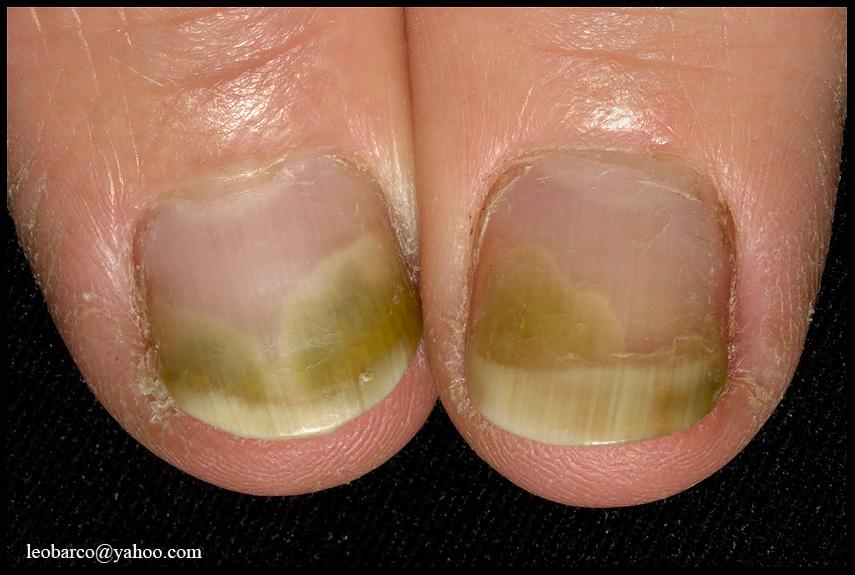 Pseudomonas Fingernail Infection Jpg