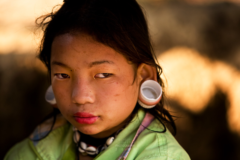 Karen hill tribe girl with large perforation in ear-lobe