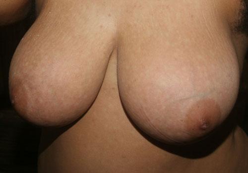 Breast Breast 029