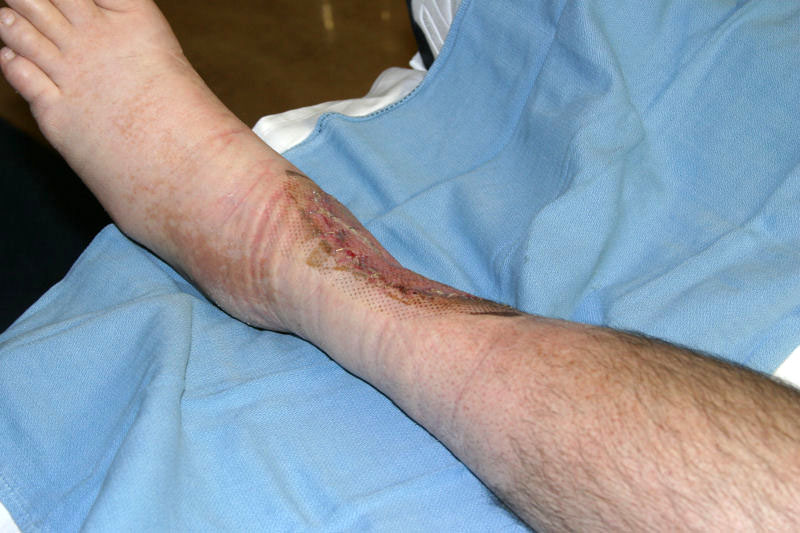 June 26 Photo 2, 7 Days After Skin Graft, 65 Days After Burn