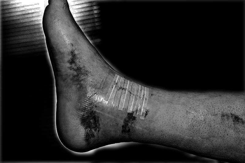 Broken, Mangled Foot