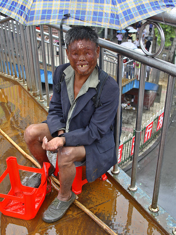 China blind and disfigured
