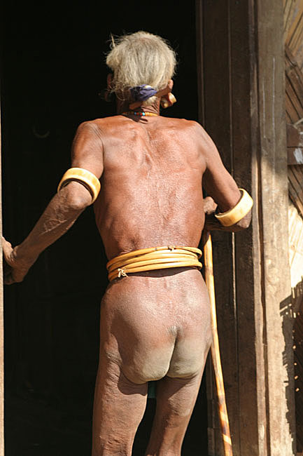 In literature referred to as the Naked Naga. This is still true for some elderly men.