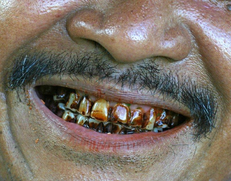 betel teeth