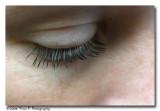Eye ...