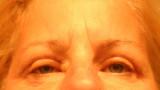 eyelid surgery 8/20/10