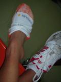 bummer!  bad ankle sprain