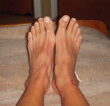 the chafing on the front of the left ankle is from the brace