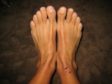 feet 5 days after the race.  The ankle swelling is significantly down.