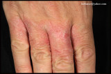 IRRITANT CONTACT DERMATITIS_01.JPG