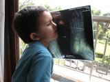 After Trip No. 1:  A close examination of his foot x-ray