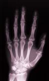 14.artritis_3.jpg