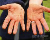 Dec 5: Tree Planting Hands