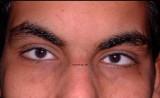 1.Micro-cornea