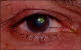 2.Corneal Ulcer