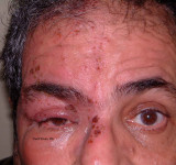 11.Herpes Zoster Ophthalmicus