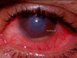 15.Corneal Ulcer with Hypopyon