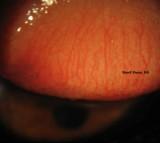 26.Conjunctival Papillae