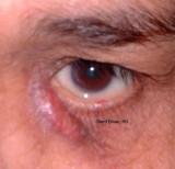 29.Adult Acute Dacryo-cystitis