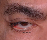 37.Lower Lid Paralytic Ectropion: VIIth-nerve Palsy