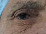 39.Lower Entropion Trichiasis
