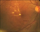 55.Background Diabetic Maculopathy