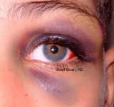 61.Black Eye due to Blunt Trauma