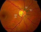 68.Glaucomatous Disc Cupping 0.6: Illustrated.JPG