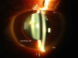 70.Anterior Polar Cataract