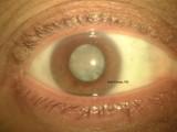 73.Mature Senile Cataract