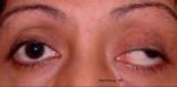 82.Left Oculomotor (III) Nerve Palsy: Ptosis & Divergent quint