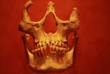 Dents décorées