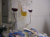 my platelets
