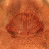 Wadotes calcaratus (epigyne)