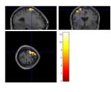 fMRI in Argentina
