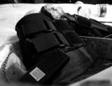 Broken femur.