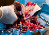 Suturing tissue after removal of a tumor.  L1016272.jpg