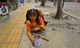 China deformed girl