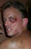 black eye bruised face boxing fighting gay man.jpg
