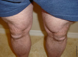 furry hairy legs fuzzy big thighs pictures.jpg